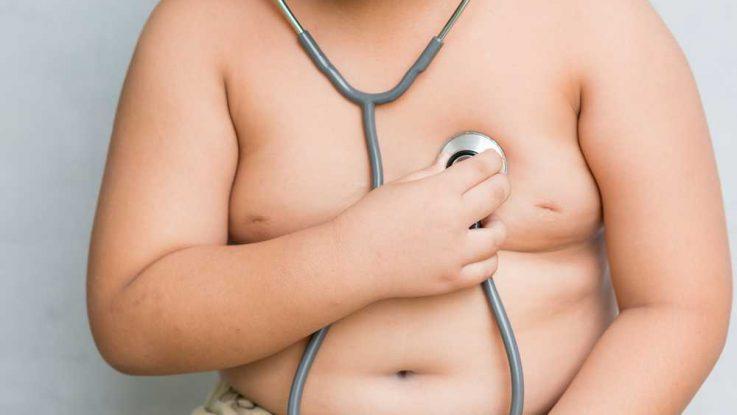 Nadváha a obezita u dětí